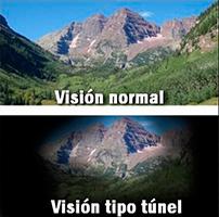 ¡Atiendete Pronto!</br> el Glaucoma es irreversible.